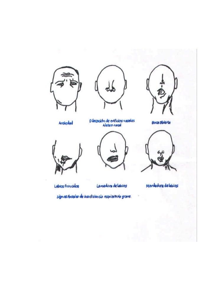 Conocimientos basicos ventilacion_mecanica