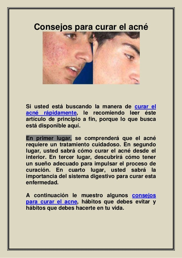 Consejos para curar el acné Si usted está buscando la manera de curar el acné rápidamente, le recomiendo leer éste artícul...