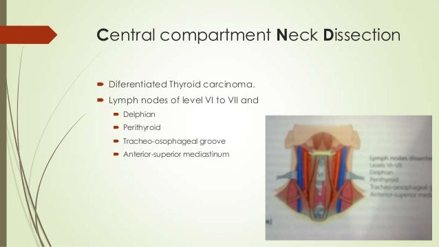 Conservative Surgery For Head And Neck Cancer