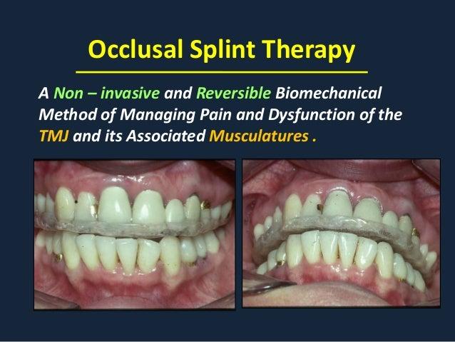 tmj splint upper or lower