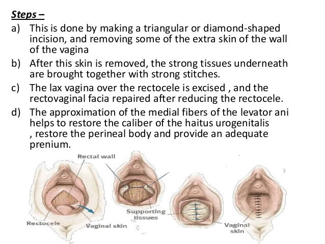 Raw vaginal area signs of