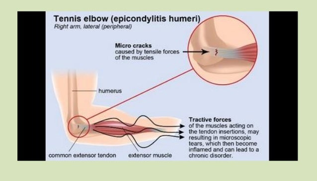 Tennis Elbow Pain Weight Lifting