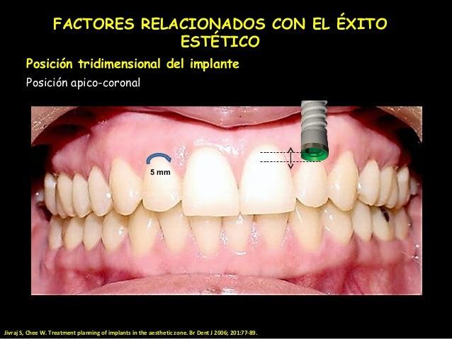 Consideraciones En El Manejo De Los Implantes En La Zona