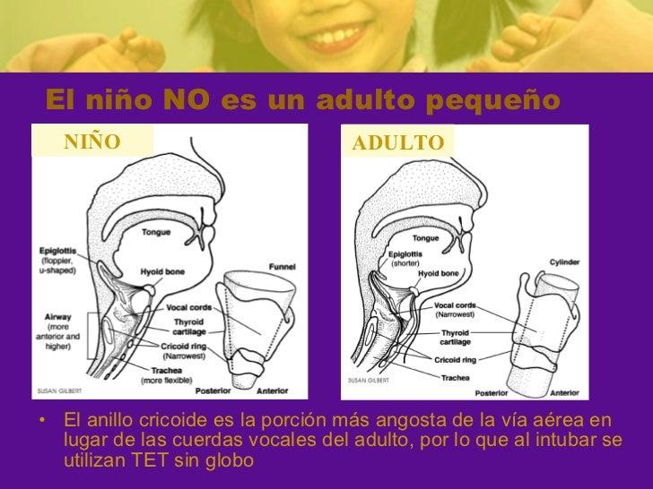Consideraciones via aerea en niño