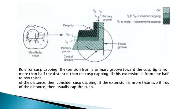 Rule for cusp capping: If extension from a primary groove toward the cusp tip is no more than half the distance, then no c...