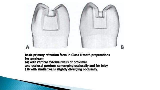 Basic primary retention form in Class II tooth preparations for amalgam (A) with vertical external walls of proximal and o...