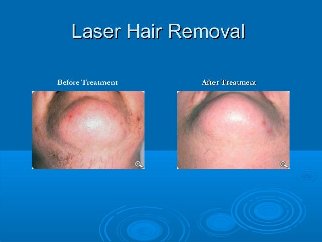 Consult Laser Hair Removal