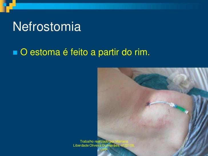 Nefrostomia   O estoma é feito a partir do rim.                     Trabalho realizado por Mariana                 Liberd...