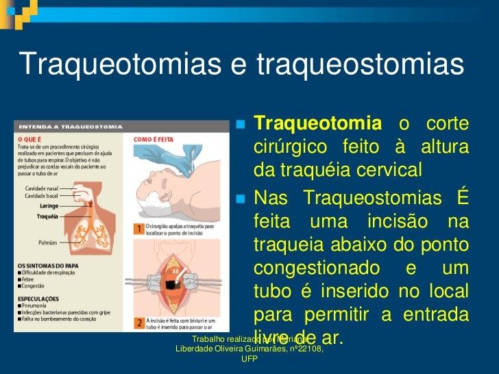 Traqueotomias e traqueostomias                             Traqueotomia o corte                              cirúrgico fe...