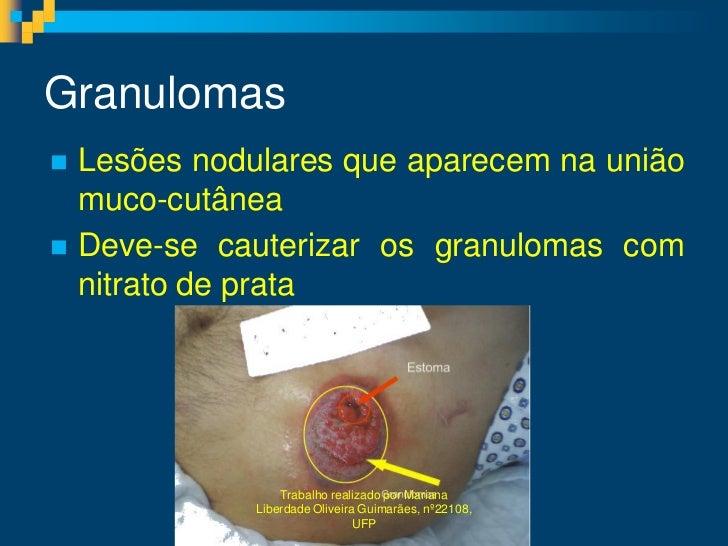 Granulomas Lesões nodulares que aparecem na união  muco-cutânea Deve-se cauterizar os granulomas com  nitrato de prata  ...
