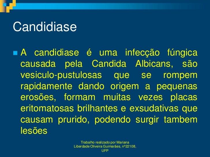 Candidiase   A candidiase é uma infecção fúngica    causada pela Candida Albicans, são    vesiculo-pustulosas que se romp...