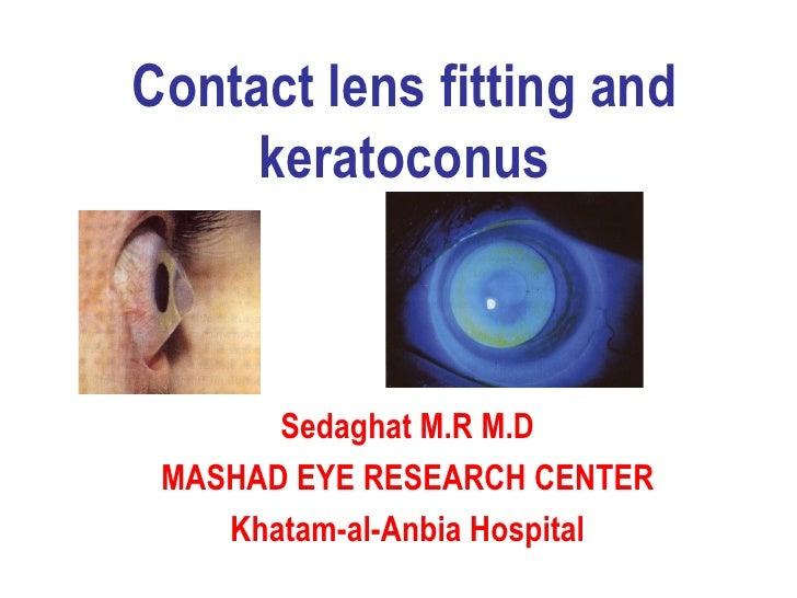 Contact lens fitting and keratoconus Sedaghat M.R M.D MASHAD EYE RESEARCH CENTER Khatam-al-Anbia Hospital