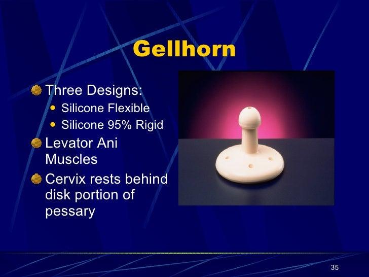 Gellhorn pessary | vaginal pessary.