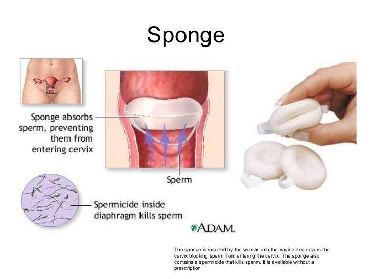 and sponge contraception sex Oral the