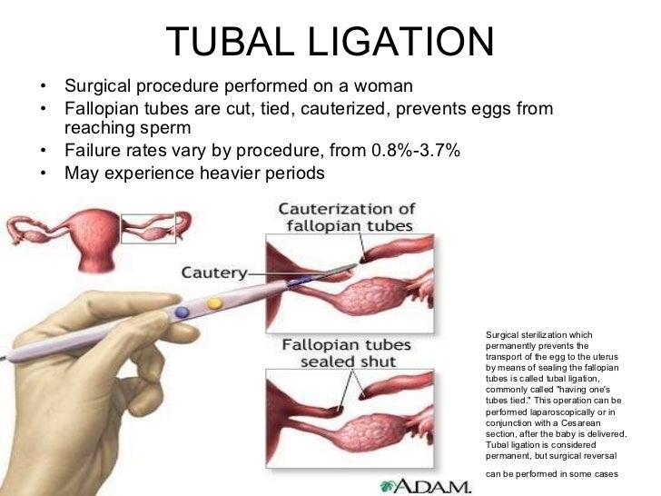 Contraception Presentation