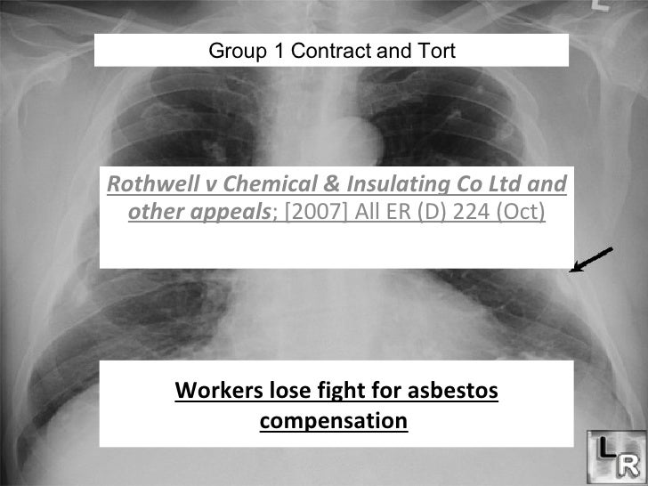 Workers lose fight for asbestos compensation   Rothwell v Chemical & Insulating Co Ltd and other appeals ; [2007] All ER (...