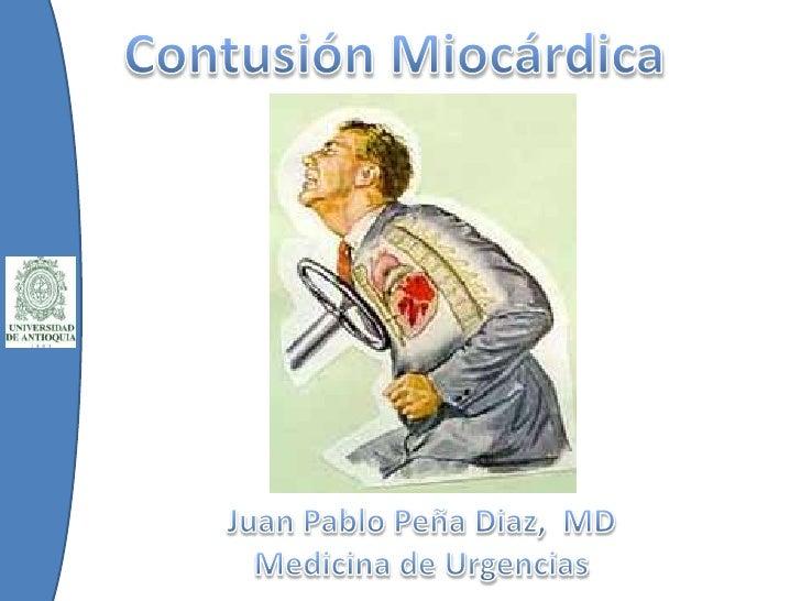 Contusión Miocárdica<br />Juan Pablo Peña Diaz,  MD<br />Medicina de Urgencias<br />