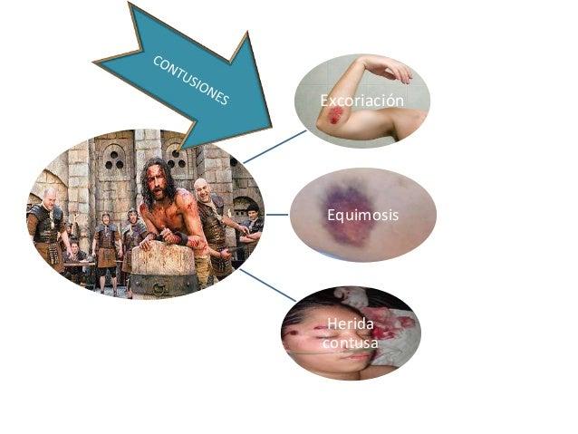 Excoriación  Equimosis  Herida contusa