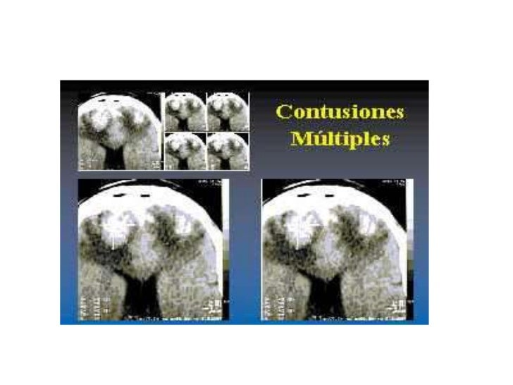 Contusiones multiples