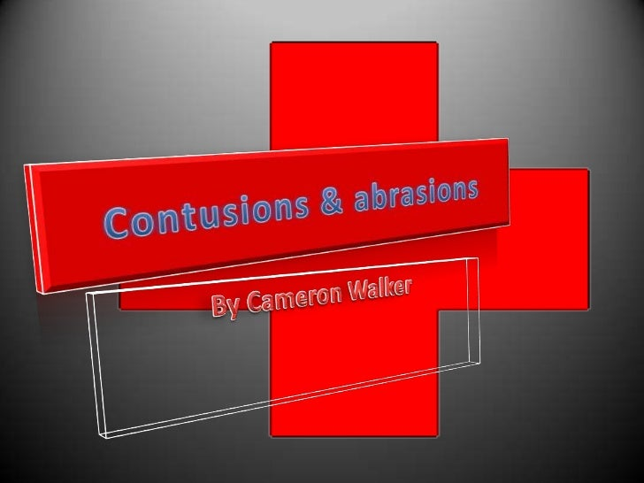 Contusions• A region of injured tissue or skin in which  blood capillaries have been ruptured, In  English, a bruise.• Con...