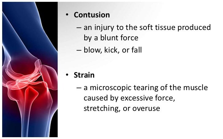 Contusions, strains and sprains Slide 3