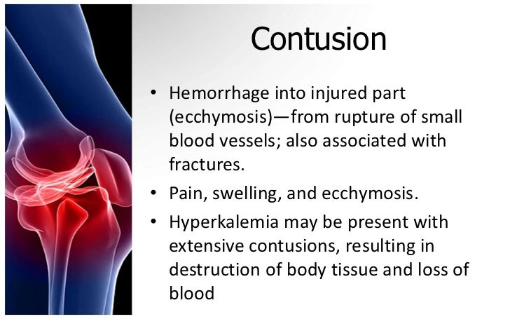Contusion• Hemorrhage into injured part  (ecchymosis)—from rupture of small  blood vessels; also associated with  fracture...