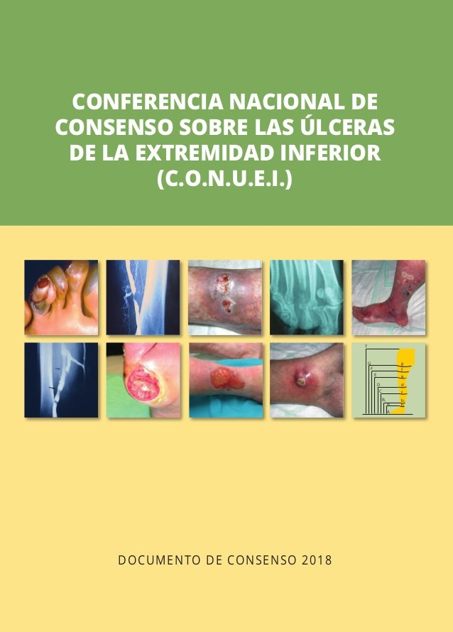 DOCUMENTO DE CONSENSO 2018 CONFERENCIA NACIONAL DE CONSENSO SOBRE LAS ÚLCERAS DE LA EXTREMIDAD INFERIOR (C.O.N.U.E.I.) DOC...