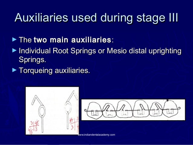 Auxiliaries used during stage III ► The two  main auxiliaries : ► Individual Root Springs or Mesio distal uprighting Sprin...