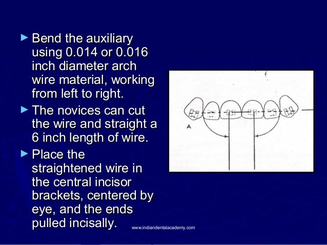 ► Bend the auxiliary  using 0.014 or 0.016 inch diameter arch wire material, working from left to right. ► The novices can...