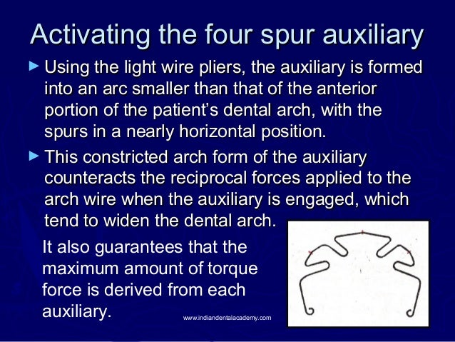 Activating the four spur auxiliary ► Using the light wire pliers, the auxiliary is formed  into an arc smaller than that o...