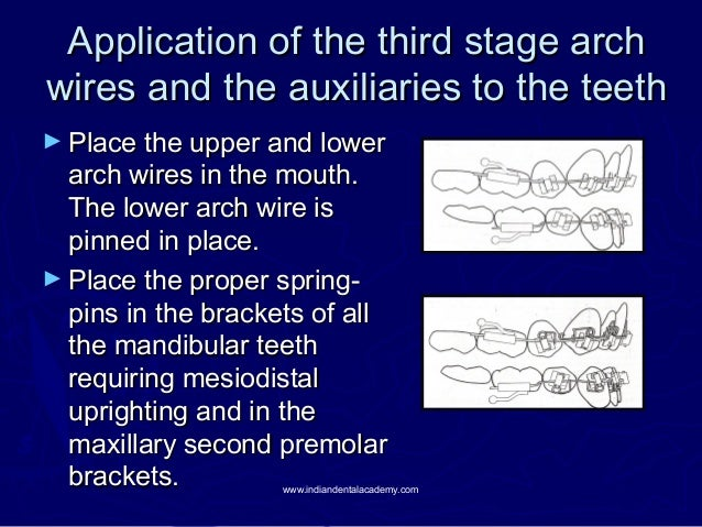 Application of the third stage arch wires and the auxiliaries to the teeth ► Place the upper and lower  arch wires in the ...