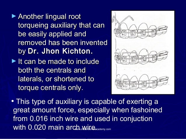► Another lingual root  torqueing auxiliary that can be easily applied and removed has been invented by Dr. Jhon Kichton. ...