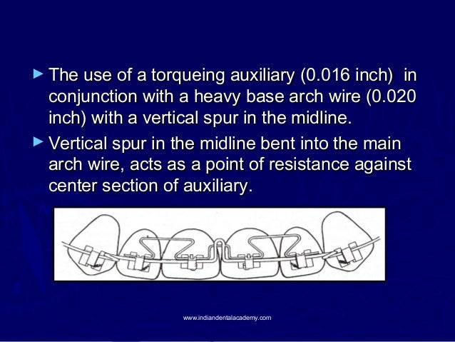 ► The use of a torqueing auxiliary (0.016 inch)  in conjunction with a heavy base arch wire (0.020 inch) with a vertical s...