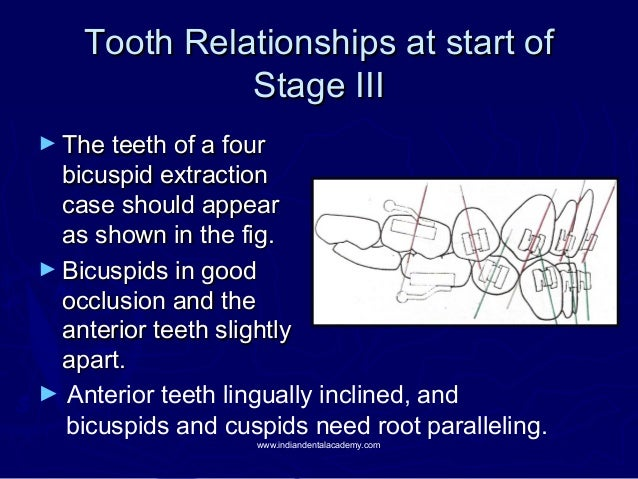 Tooth Relationships at start of Stage III ► The teeth of a four  bicuspid extraction case should appear as shown in the fi...