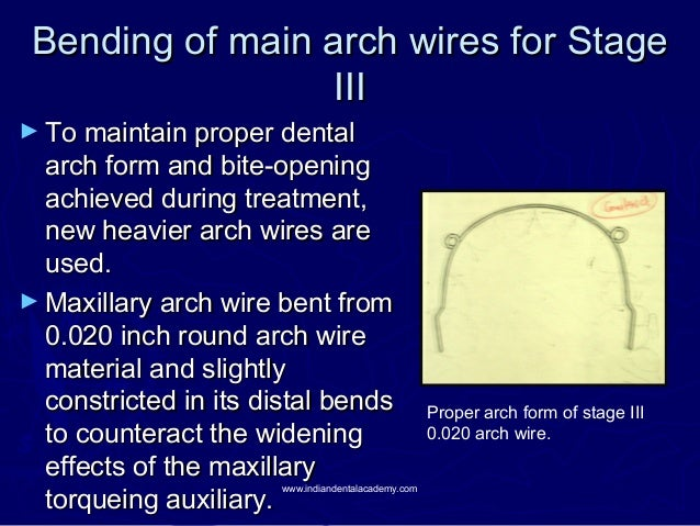 Bending of main arch wires for Stage III  ► To maintain proper dental  arch form and bite-opening achieved during treatmen...