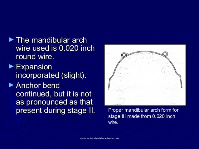 ► The mandibular arch  wire used is 0.020 inch round wire. ► Expansion incorporated (slight). ► Anchor bend continued, but...