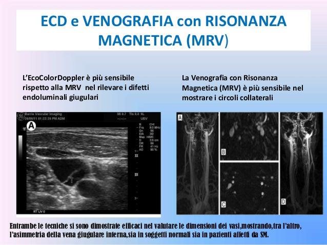 Gravidanza e trombosi di vena di una retina