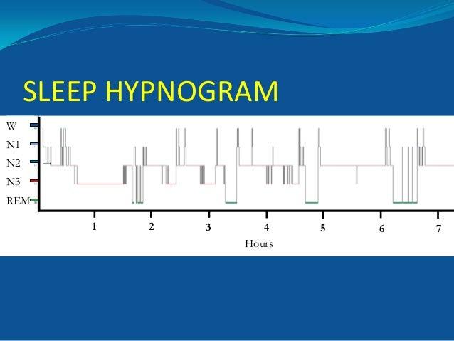 SLEEP HYPNOGRAM W N2  1  N1 N3 REM 1  2  3  4 Hours  5  6  7
