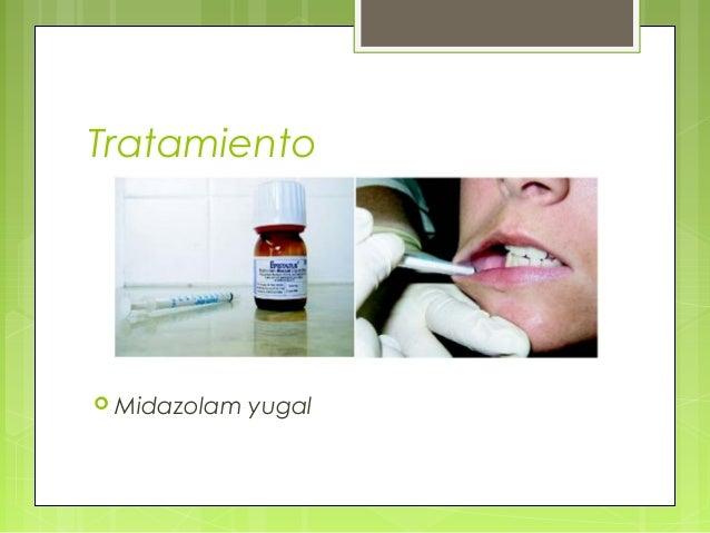 Tratamiento  Midazolam yugal