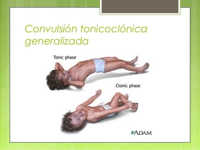 Convulsión tonicoclónica generalizada