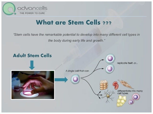 Copd Stem Cell Treatment Stem Cell Therapy Cure For