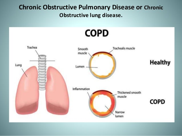 chronic obstructive pulmonary disease 3 essay Chronic obstructive pulmonary disease essays under age smoking under age smoking statistics show that 3 out of 4 under age kids that try to buy cigarette get away with it though, in america it is illegal to sell cigarettes to.