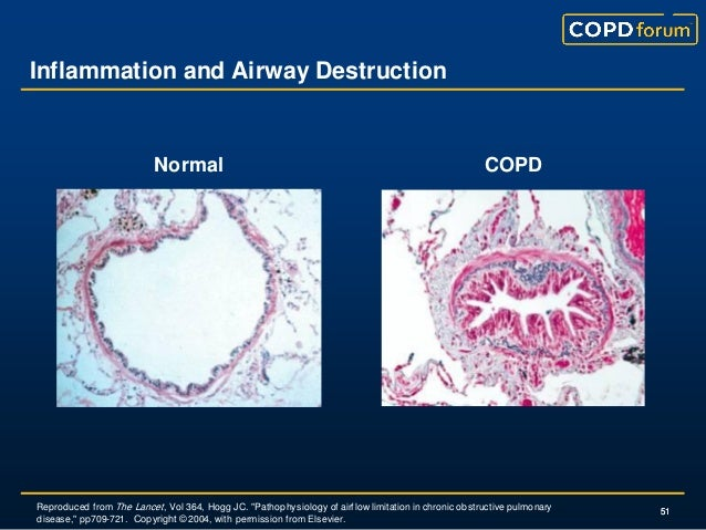 Is COPD an inflammatory disease?