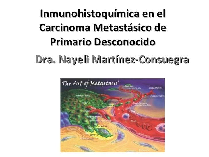 Inmunohistoquímica en el Carcinoma Metastásico de Primario Desconocido Dra. Nayeli Martínez-Consuegra