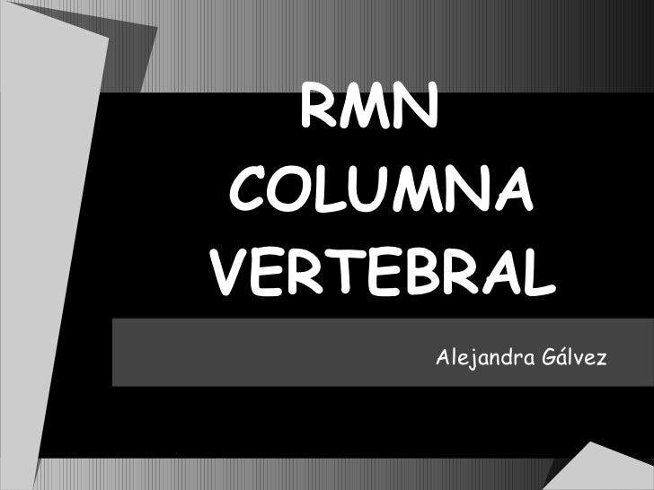 RMN  COLUMNA VERTEBRAL Alejandra Gálvez
