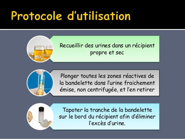La chimie des urines Slide 3