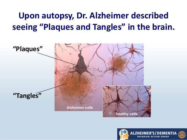 What is Alzheimer's Disease? | CDC