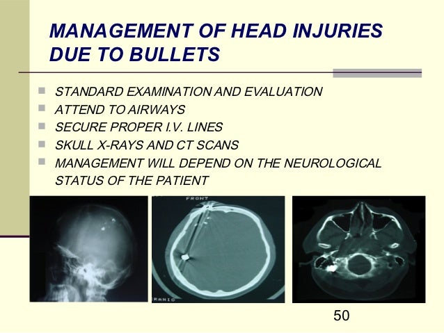 Brain enhancer pill image 1