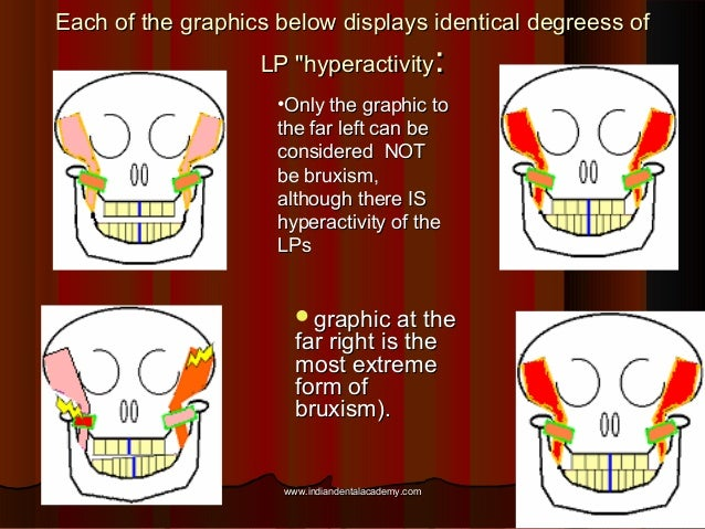 """Each of the graphics below displays identical degreess ofEach of the graphics below displays identical degreess of LP """"hyp..."""