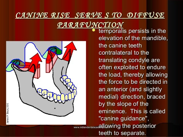 CANINE RISE SERVE S TO DIFFUSECANINE RISE SERVE S TO DIFFUSE PARAFUNCTIONPARAFUNCTION  temporalis persists in thetemporal...